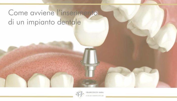 Impianti dentali - Francesco Saba