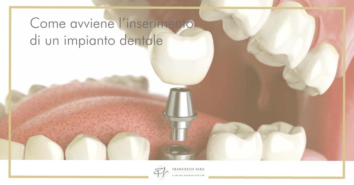 Impianti dentali - Francesco Saba | Cliniche Odontoiatriche a Roma