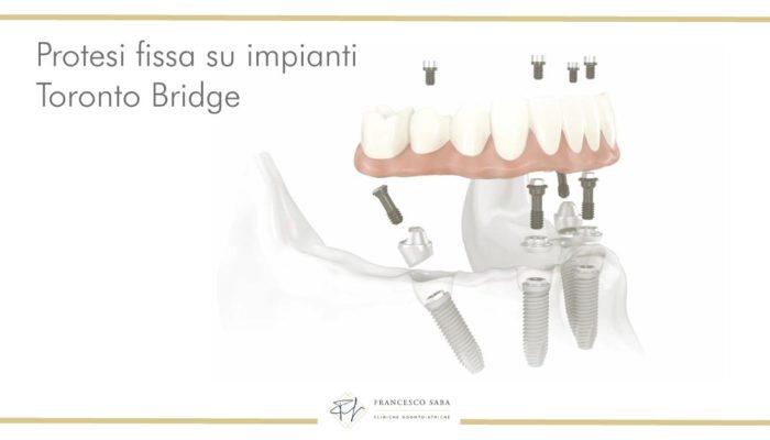 Protesi Fissa su impianti - Francesco Saba