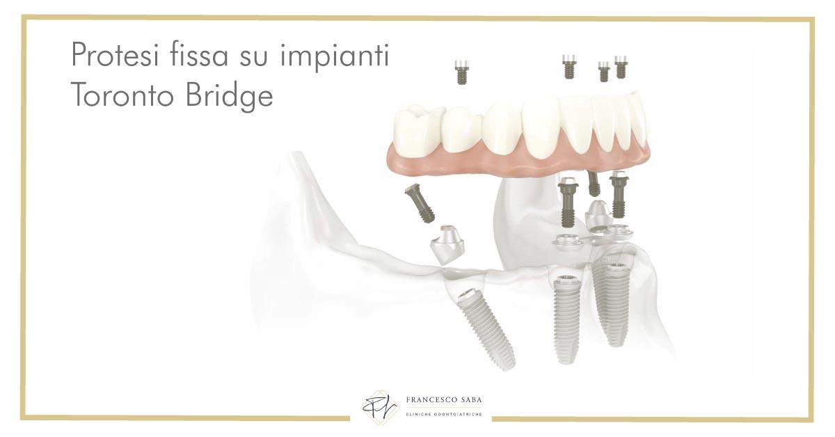 Protesi Fissa su impianti - Francesco Saba | Cliniche Odontoiatriche a Roma