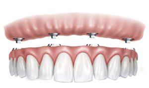 Implantologia dentale a carico immediato 1