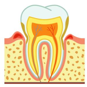 Parodontite: sintomi e caratteristiche