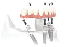 Quanto costa un impianto dentale | implantologia | Cliniche Francesco Saba